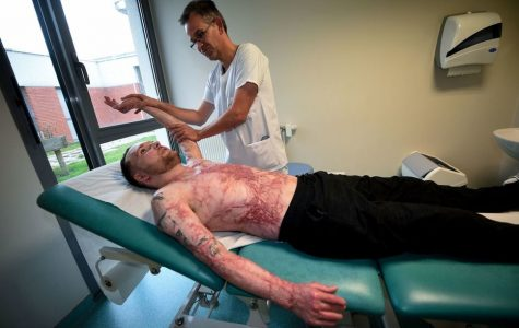 Twin saves brother with skin graft